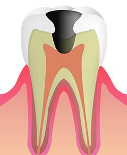 神経に達したむし歯:C3